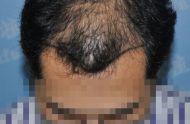 头发稀少吃什么比较好