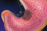 萎缩性胃炎是个什么样的胃病?与胃癌有什么关系
