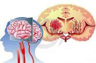 预防脑溢血要注意这6点